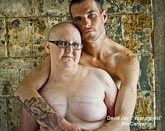 επιζώντες του καρκίνου